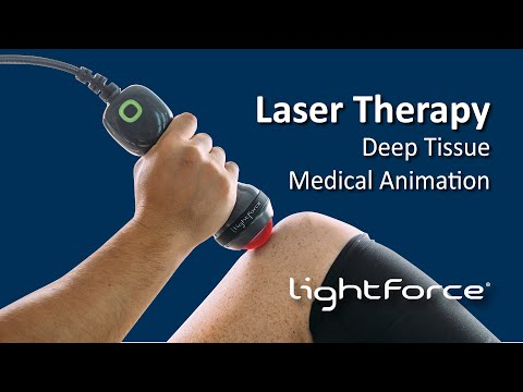 Deep Tissue Laser Therapy Medical Animation