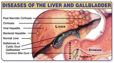 FLUSHING your Liver/Gallbladder - for the more advanced 1
