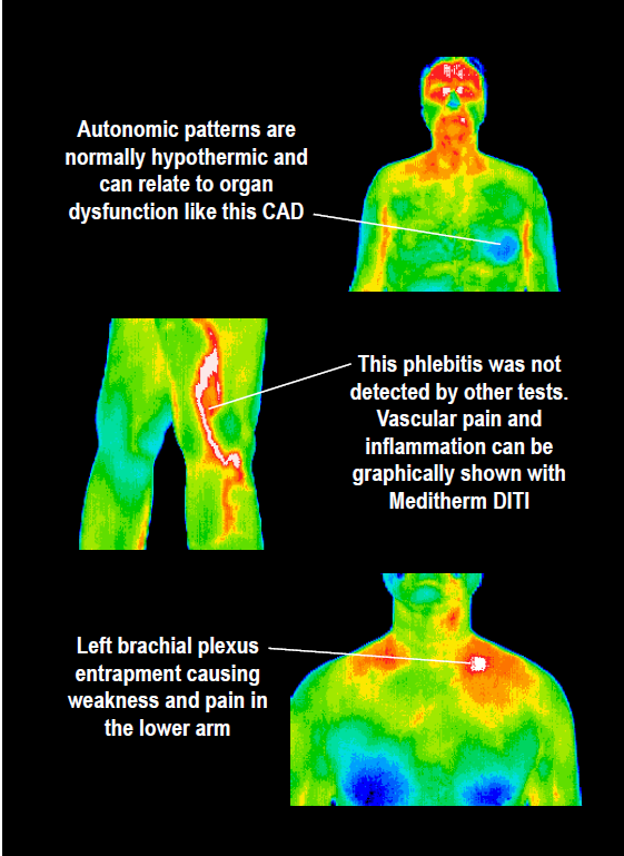 Thermography and Its Use in Cancer Treatment 2