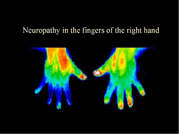 Thermography and Its Use in Cancer Treatment 4